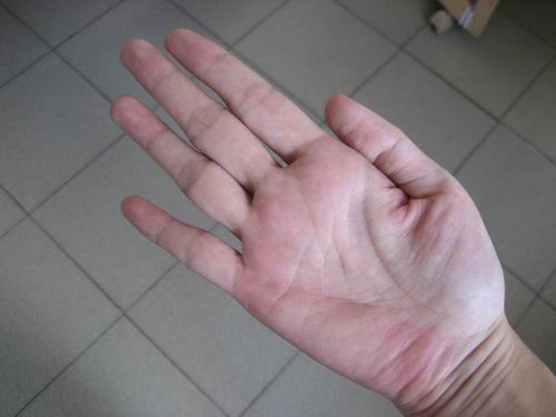 手掌 肝掌,肝掌正常手掌图片,正常手掌和肝掌对比(第 ...