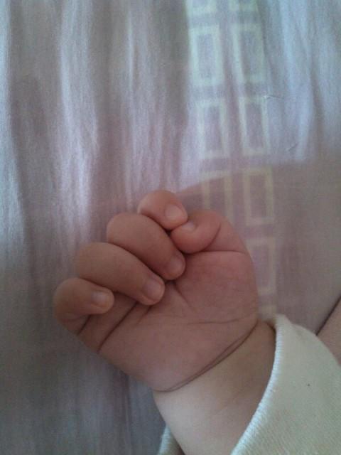 有没有宝宝还拇指内扣的