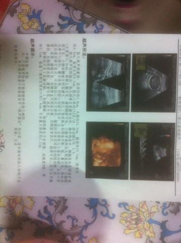journal_insert_pic_254529997
