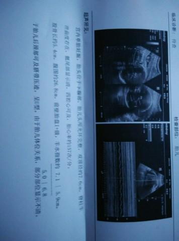 journal_insert_pic_170346444